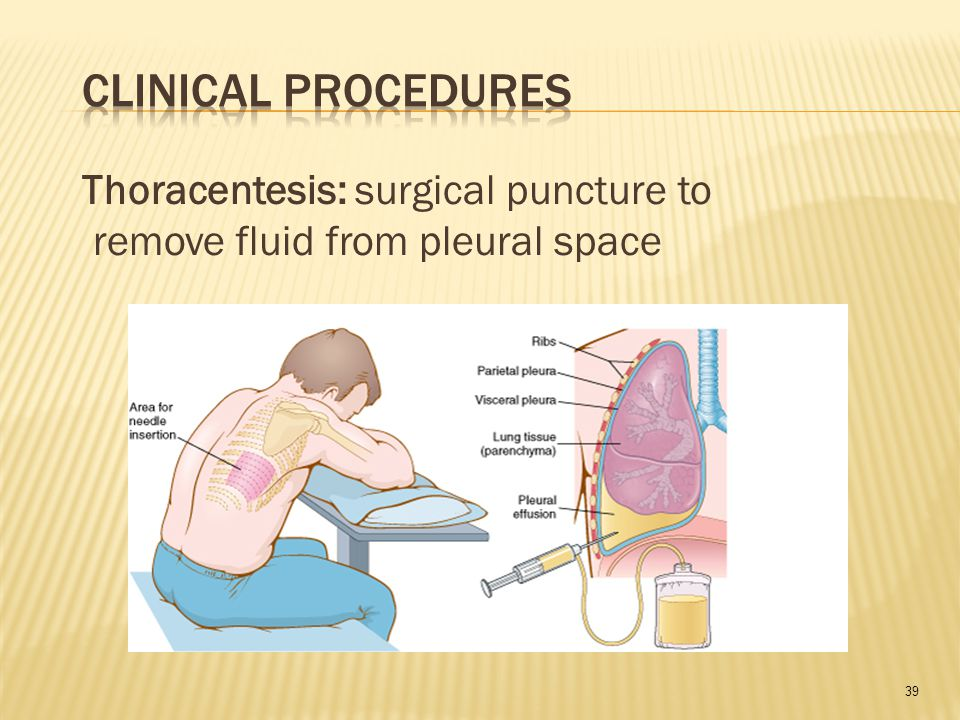 39 Thoracentesis: surgical puncture to remove fluid from pleural space