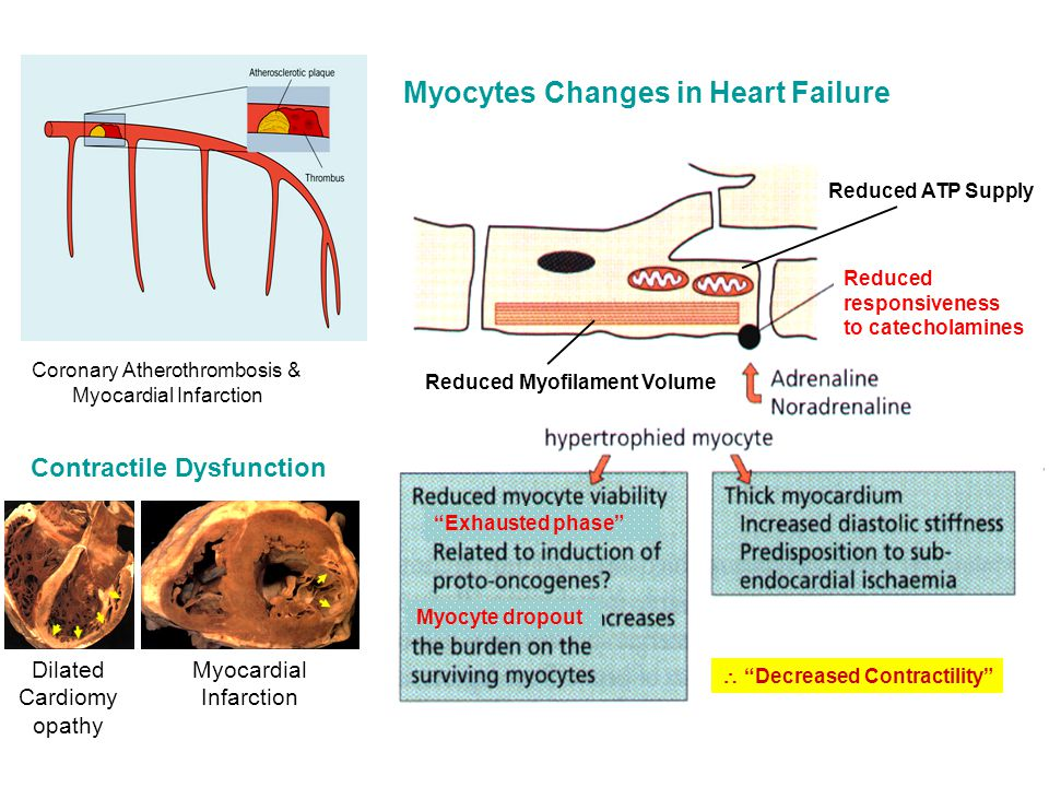Coronary Atherothrombosis & Myocardial Infarction Myocytes Changes in Heart Failure Reduced responsiveness to catecholamines Exhausted phase Myocyte dropout Reduced Myofilament Volume Reduced ATP Supply  Decreased Contractility Dilated Cardiomy opathy Myocardial Infarction Contractile Dysfunction