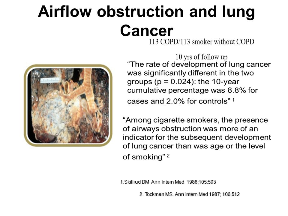 Airflow obstruction and lung Cancer 2. Tockman MS.