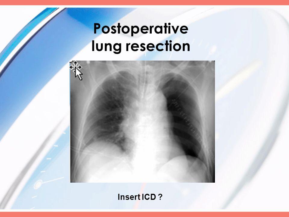 Insert ICD ?