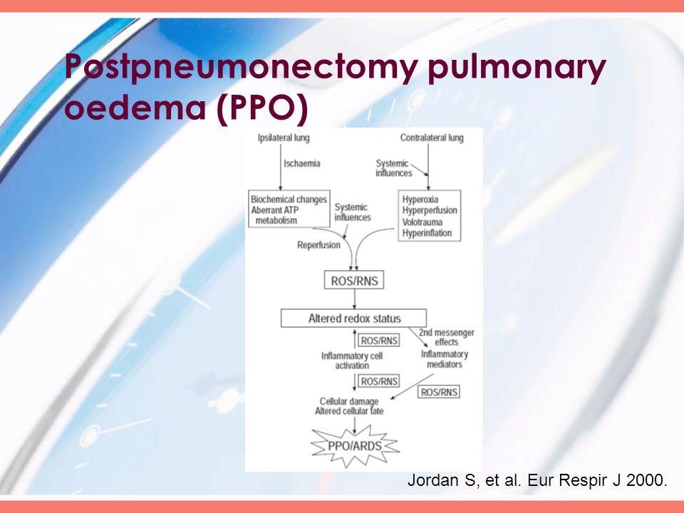 Postpneumonectomy pulmonary oedema (PPO) Jordan S, et al. Eur Respir J 2000.