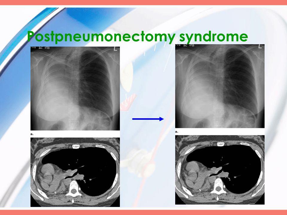 Postpneumonectomy syndrome