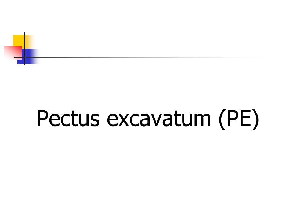 Pectus excavatum (PE)