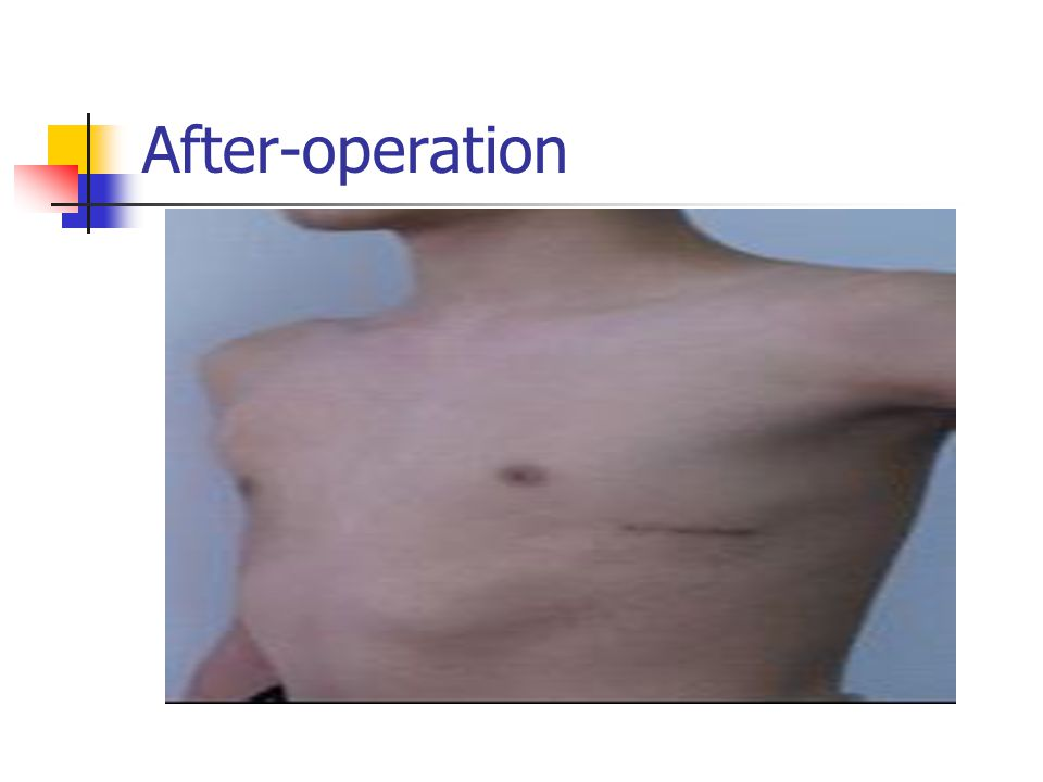 After-operation