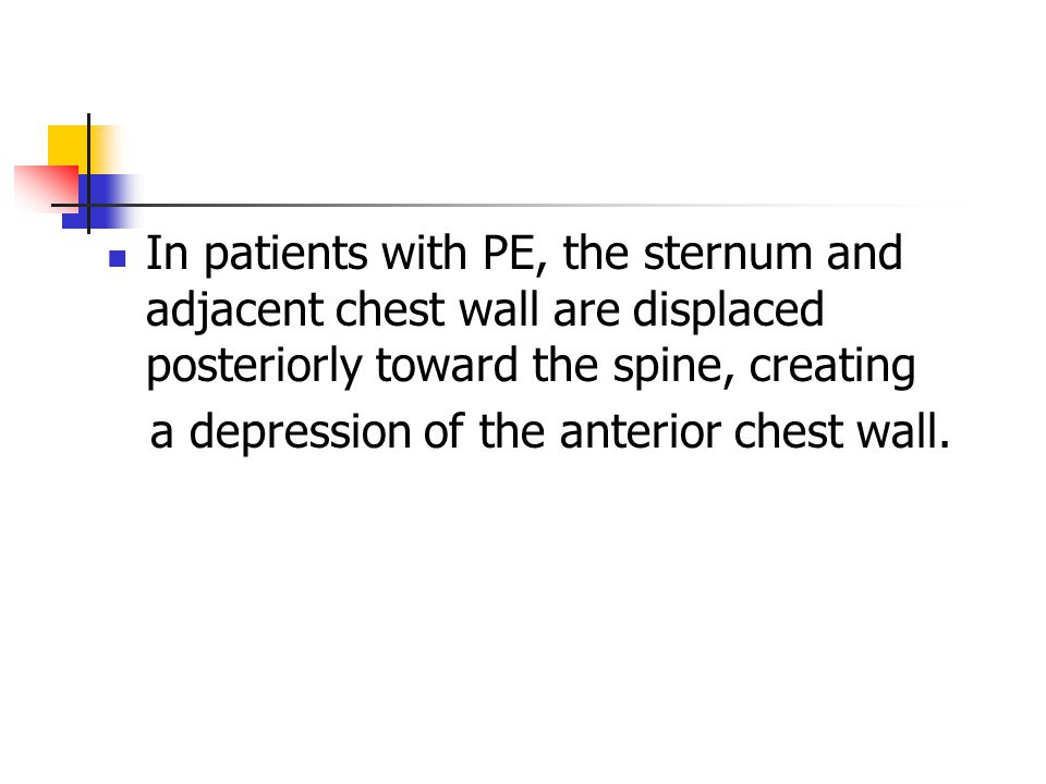 In patients with PE, the sternum and adjacent chest wall are displaced posteriorly toward the spine, creating a depression of the anterior chest wall.