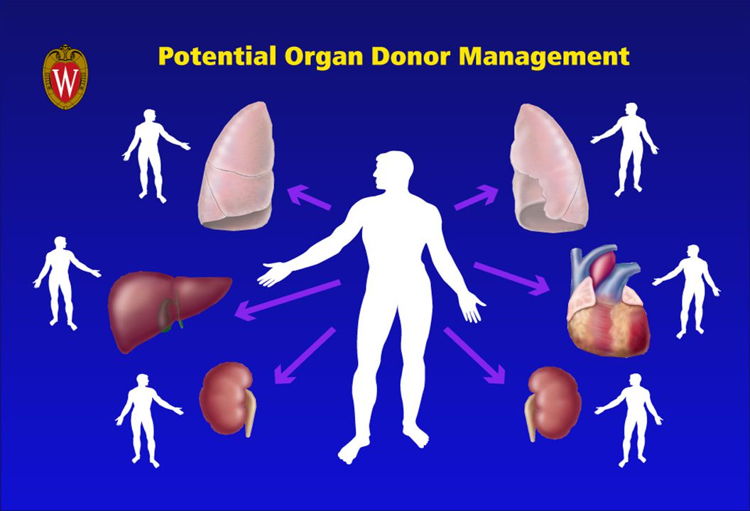 Maximal Utilization and Optimal Management of Potential Organ Donors Surveillance to identify patients with severe neurologic injury likely to progress to brain death Standardized method for brain death declaration Uniform request for consent Optimal medical management of donor