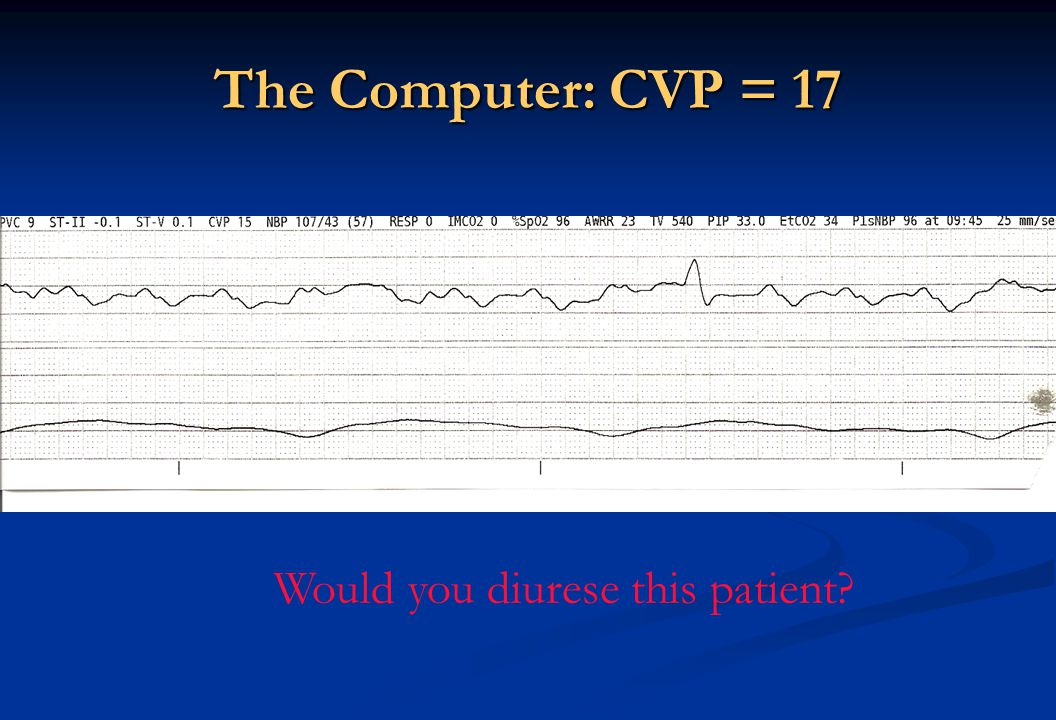The Computer: CVP = 17 Would you diurese this patient