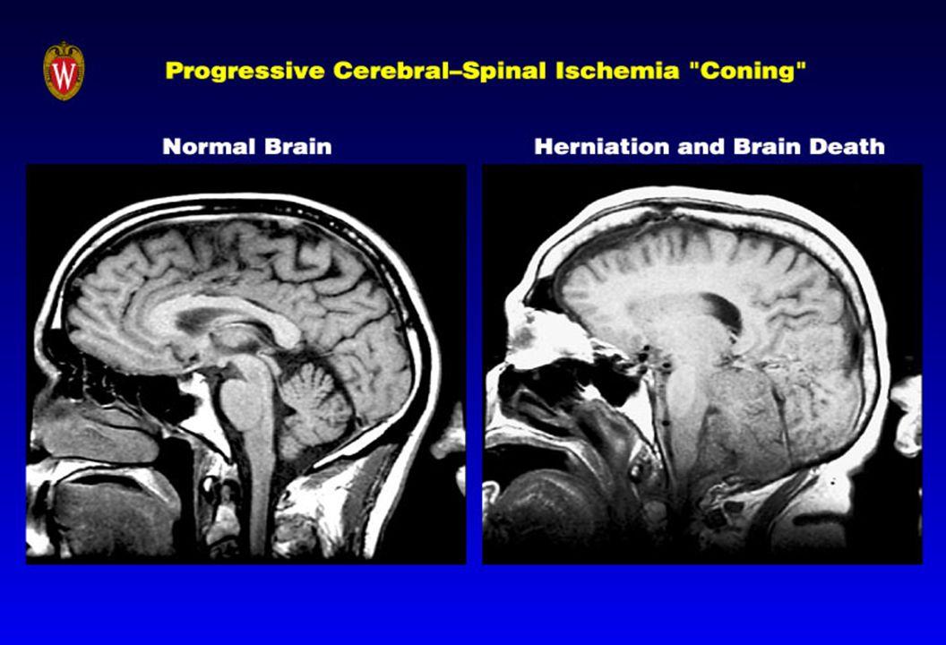 The Clinical Picture PEEP = 12 cm H 2 O.PEEP = 12 cm H 2 O.