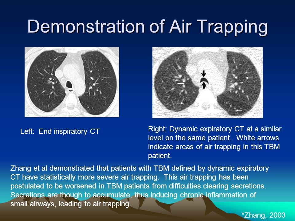 Demonstration of Air Trapping *Zhang, 2003 Left: End inspiratory CT Zhang et al demonstrated that patients with TBM defined by dynamic expiratory CT h