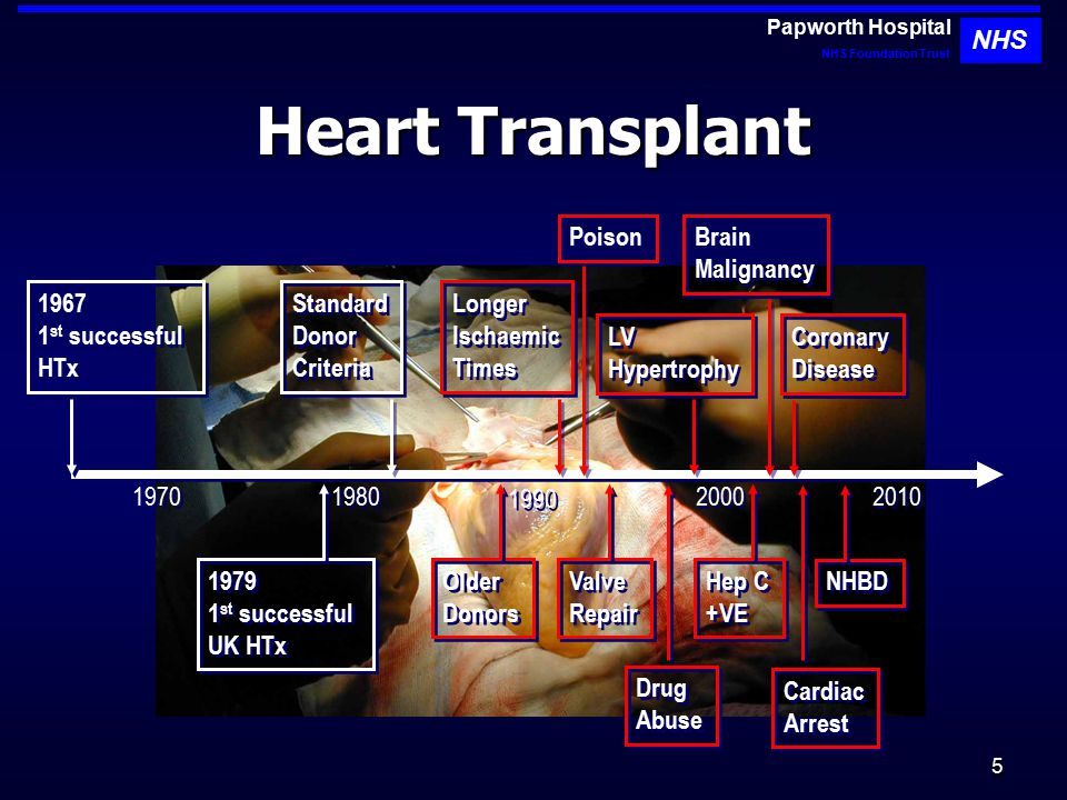 6 Heart Transplant Rates 2006 Papworth Hospital NHS Foundation Trust NHS 2009 UK Heart Transplant Rate