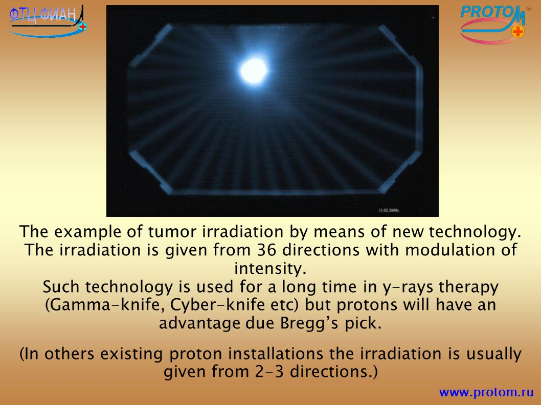 The example of tumor irradiation by means of new technology. The irradiation is given from 36 directions with modulation of intensity. Such technology