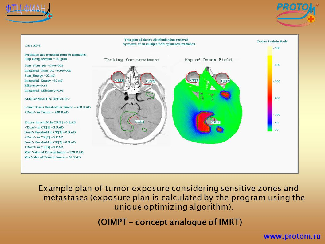Example plan of tumor exposure considering sensitive zones and metastases (exposure plan is calculated by the program using the unique optimizing algo
