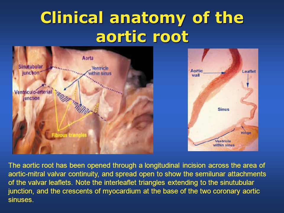 Clinical anatomy of the aortic root The aortic root has been opened through a longitudinal incision across the area of aortic-mitral valvar continuity, and spread open to show the semilunar attachments of the valvar leaflets.