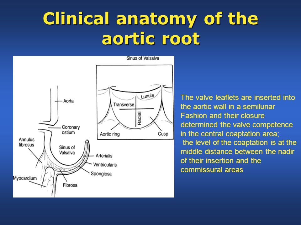 Clinical anatomy of the aortic root The valve leaflets are inserted into the aortic wall in a semilunar Fashion and their closure determined the valve