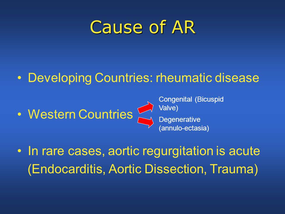Cause of AR Developing Countries: rheumatic disease Western Countries In rare cases, aortic regurgitation is acute (Endocarditis, Aortic Dissection, T