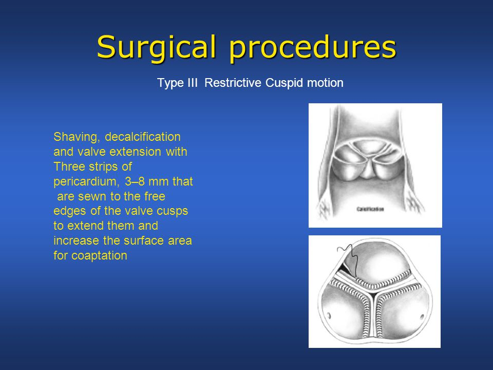 Surgical procedures Type III Restrictive Cuspid motion Shaving, decalcification and valve extension with Three strips of pericardium, 3–8 mm that are sewn to the free edges of the valve cusps to extend them and increase the surface area for coaptation