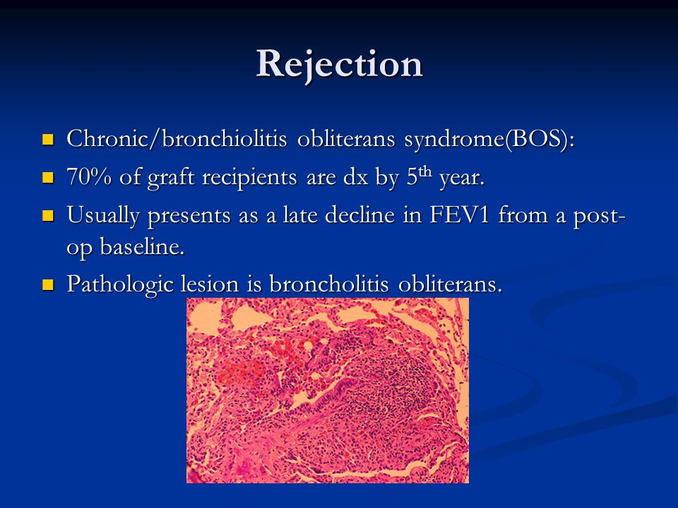 Rejection Chronic/bronchiolitis obliterans syndrome(BOS): Chronic/bronchiolitis obliterans syndrome(BOS): 70% of graft recipients are dx by 5 th year.