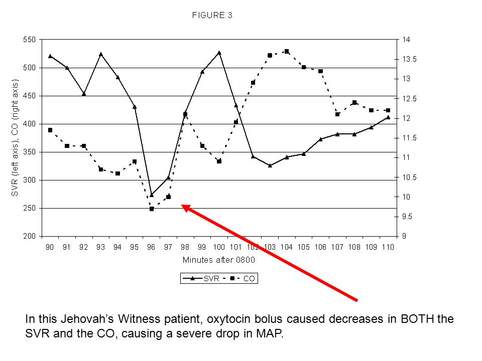 In this Jehovah's Witness patient, oxytocin bolus caused decreases in BOTH the SVR and the CO, causing a severe drop in MAP.