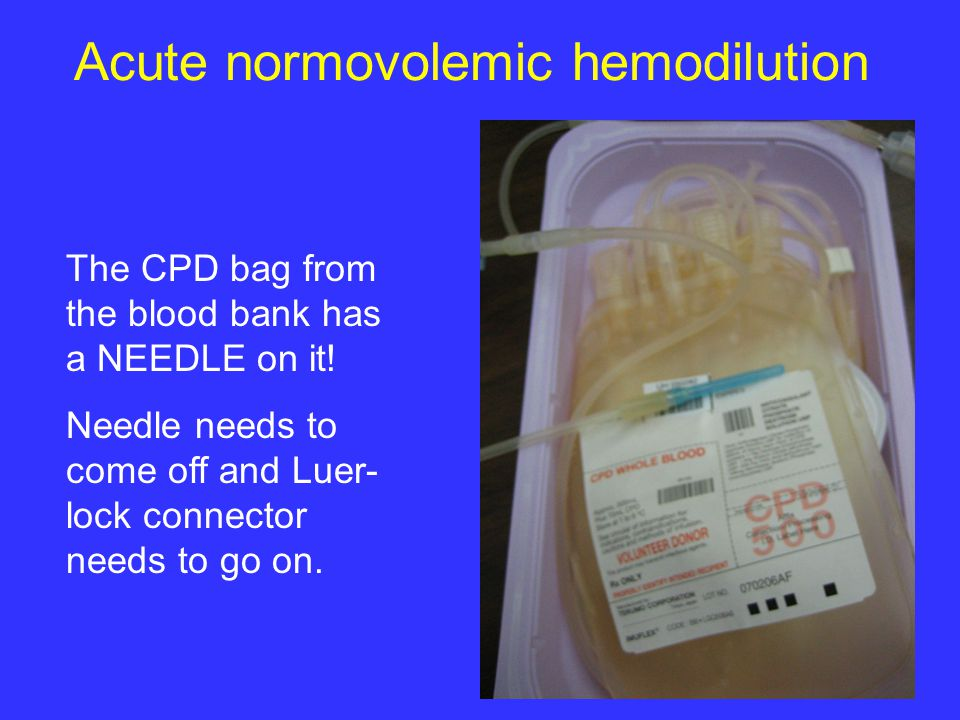 Acute normovolemic hemodilution The CPD bag from the blood bank has a NEEDLE on it.