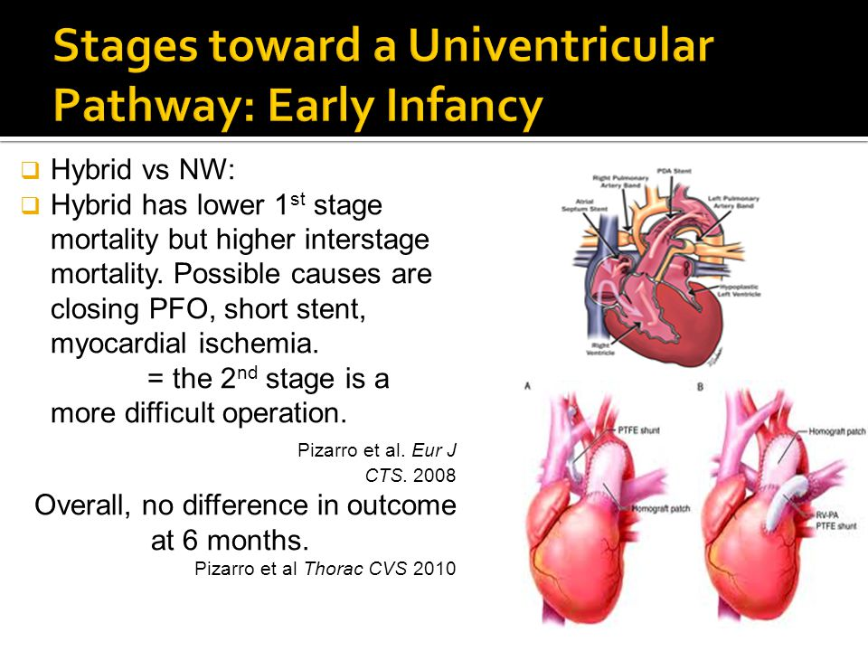  Hybrid vs NW:  Hybrid has lower 1 st stage mortality but higher interstage mortality. Possible causes are closing PFO, short stent, myocardial isch