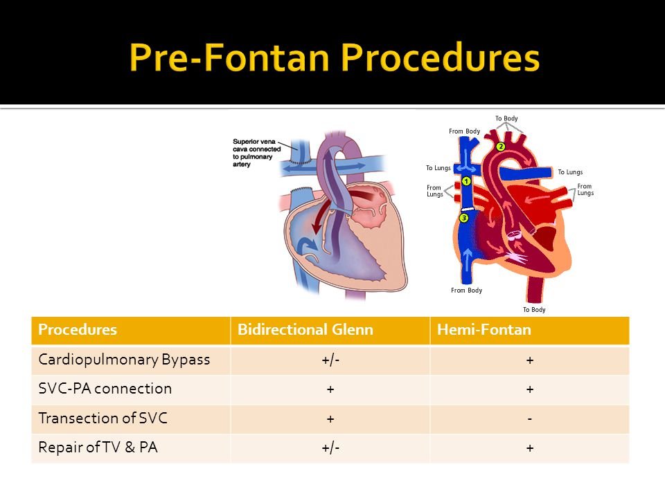 ProceduresBidirectional GlennHemi-Fontan Cardiopulmonary Bypass+/-+ SVC-PA connection++ Transection of SVC+- Repair of TV & PA+/-+