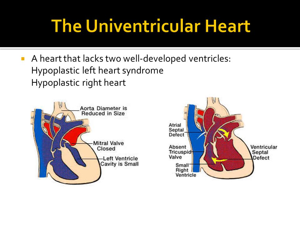  A heart that lacks two well-developed ventricles: Hypoplastic left heart syndrome Hypoplastic right heart