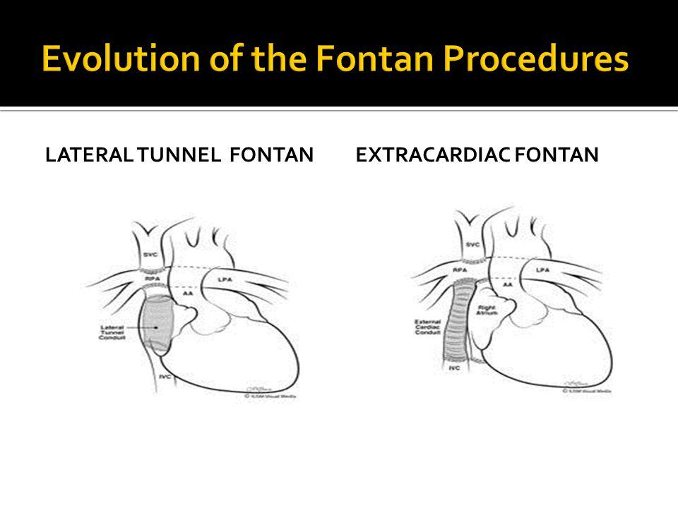 LATERAL TUNNEL FONTANEXTRACARDIAC FONTAN