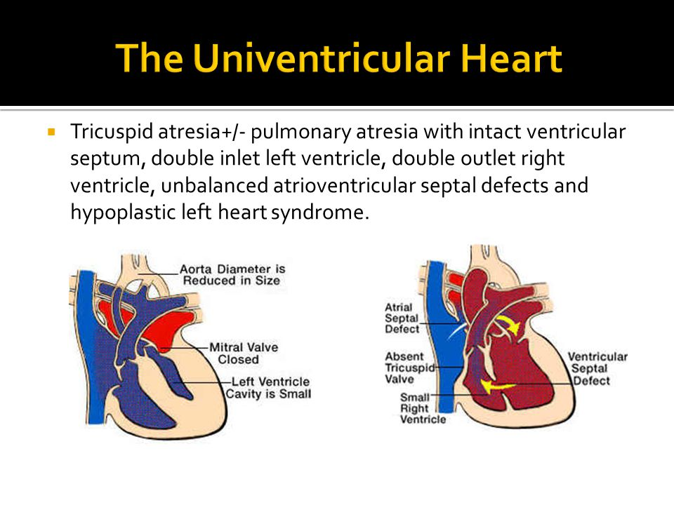  Tricuspid atresia+/- pulmonary atresia with intact ventricular septum, double inlet left ventricle, double outlet right ventricle, unbalanced atriov