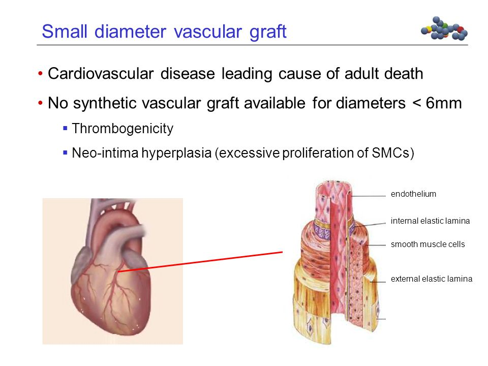 Small diameter vascular graft Tunica media Cardiovascular disease leading cause of adult death No synthetic vascular graft available for diameters < 6mm  Thrombogenicity  Neo-intima hyperplasia (excessive proliferation of SMCs) external elastic lamina smooth muscle cells internal elastic lamina endothelium