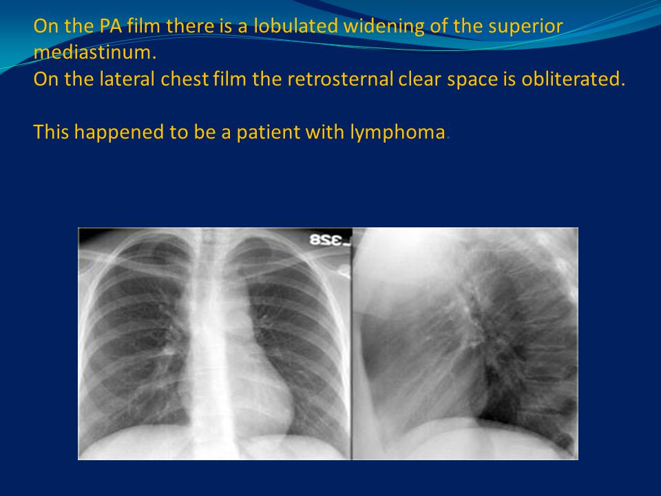 On the PA film there is a lobulated widening of the superior mediastinum. On the lateral chest film the retrosternal clear space is obliterated. This