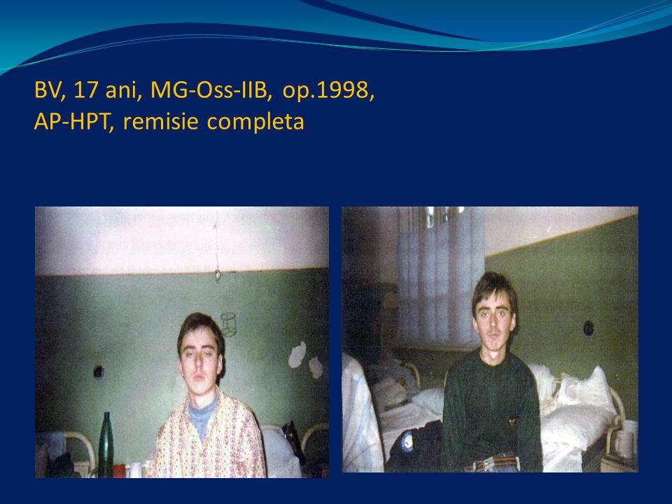 BV, 17 ani, MG-Oss-IIB, op.1998, AP-HPT, remisie completa