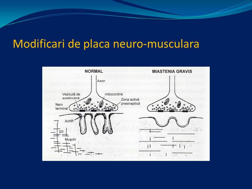 Modificari de placa neuro-musculara