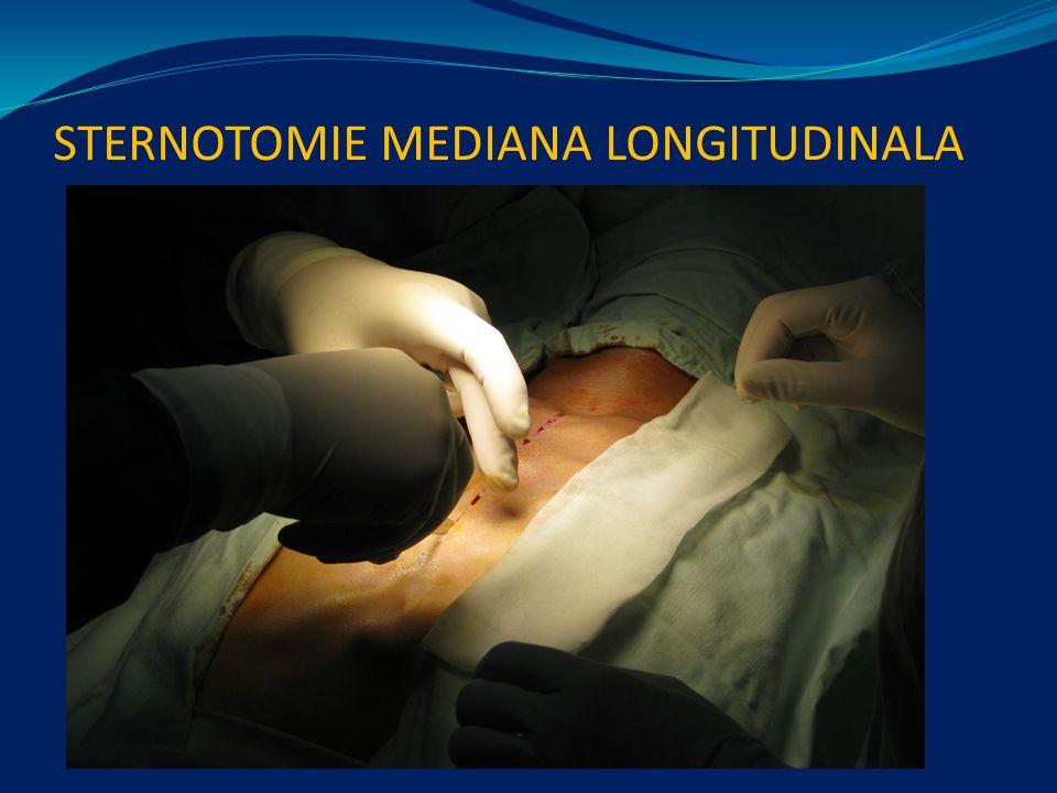 STERNOTOMIE MEDIANA LONGITUDINALA