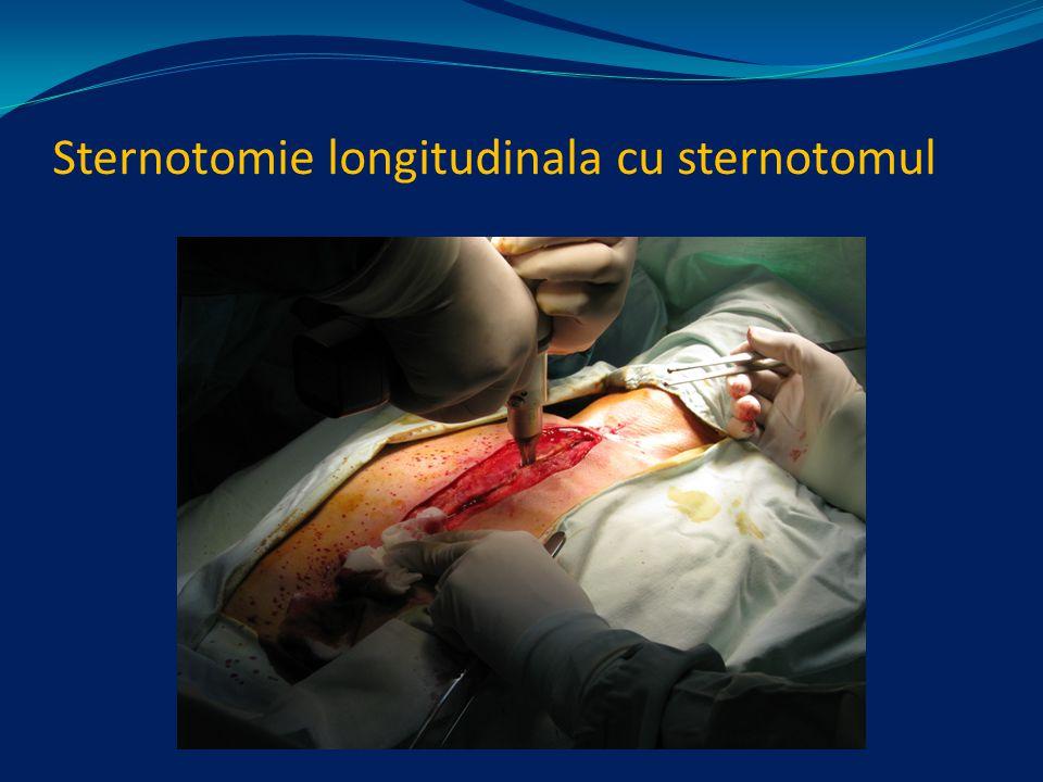 Sternotomie longitudinala cu sternotomul