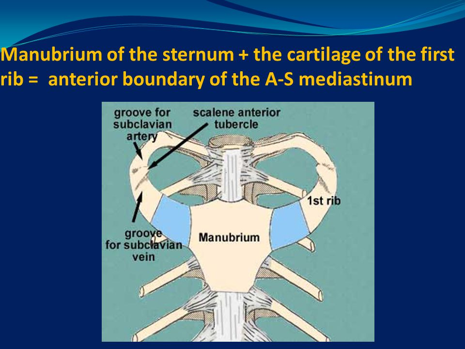 Manubrium of the sternum + the cartilage of the first rib = anterior boundary of the A-S mediastinum