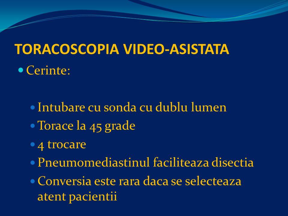 TORACOSCOPIA VIDEO-ASISTATA Cerinte: Intubare cu sonda cu dublu lumen Torace la 45 grade 4 trocare Pneumomediastinul faciliteaza disectia Conversia este rara daca se selecteaza atent pacientii