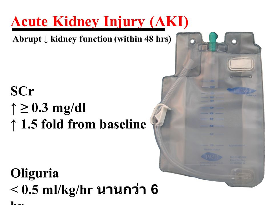 2547 Acute Dialysis Quality Initiative (ADQI) group แบ่งระดับความรุนแรงของภาวะ ARF