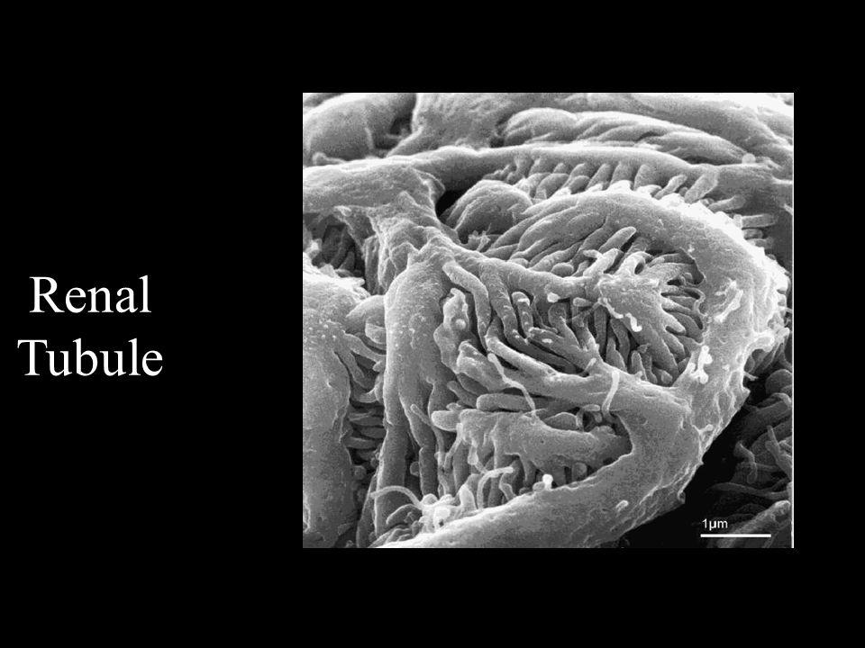 การแบ่งระดับความรุนแรงของ AKI โดยปรับตาม RIFLE criteria StageSerum creatinine (SCr) criteria Urine output criteria 1 ↑ SCr ≥ 0.3 mg/dl (26.4 μmol/L) หรือ ↑ ≥ 150 ถึง 200% (1.5 - 2 เท่าของ ค่าเดิม ) ปัสสาวะ < 0.5 ml/kg/hr นานกว่า 6 ชั่วโมง 2 ↑ > 200 ถึง 300% (2 - 3 เท่าของค่า เดิม ) ปัสสาวะ < 0.5 ml/kg/hr นานกว่า 12 ชั่วโมง 3 ↑ > 300% (3 เท่าของค่าเดิม ) หรือ SCr ≥ 4.0 mg/dl (354 μmol/L) ร่วมกับ ↑SCr ≥ 0.5 mg/dl (44 μmol/L) ปัสสาวะ < 0.3 ml/kg/hr นานกว่า 24 ชั่วโมง หรือ Anuria นานกว่า 12 ชั่วโมง