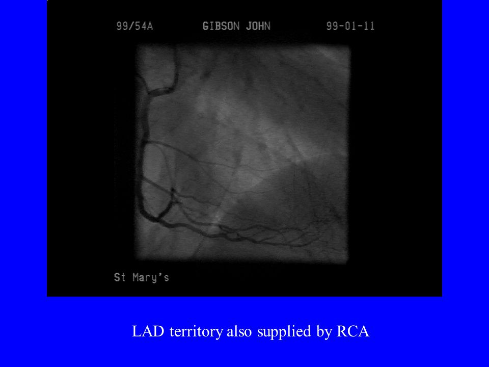 LAD territory also supplied by RCA