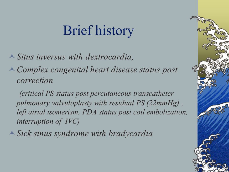 Brief history Situs inversus with dextrocardia, Complex congenital heart disease status post correction (critical PS status post percutaneous transcatheter pulmonary valvuloplasty with residual PS (22mmHg), left atrial isomerism, PDA status post coil embolization, interruption of IVC) Sick sinus syndrome with bradycardia