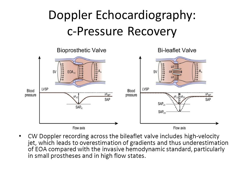 Doppler Echocardiography: c-Pressure Recovery CW Doppler recording across the bileaflet valve includes high-velocity jet, which leads to overestimatio