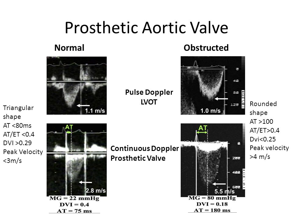 Prosthetic Aortic Valve NormalObstructed Pulse Doppler LVOT Continuous Doppler Prosthetic Valve Triangular shape AT <80ms AT/ET <0.4 DVI >0.29 Peak Ve
