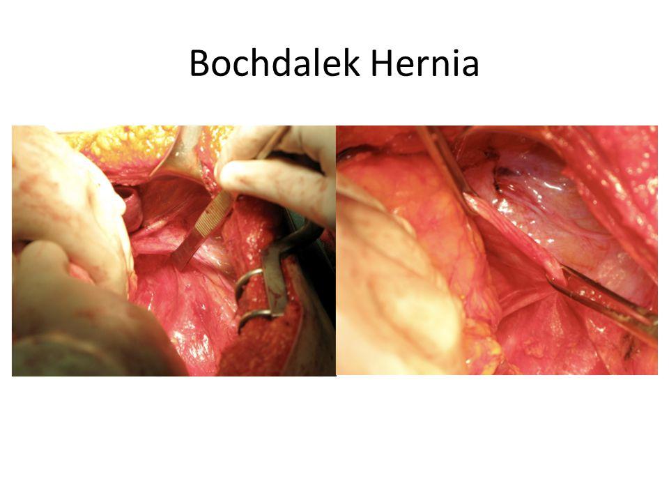 Bochdalek Hernia