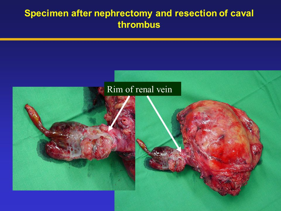 Specimen after nephrectomy and resection of caval thrombus Rim of renal vein
