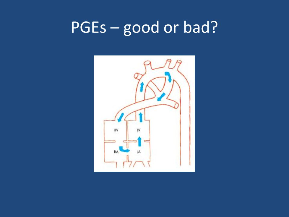 PGEs – good or bad