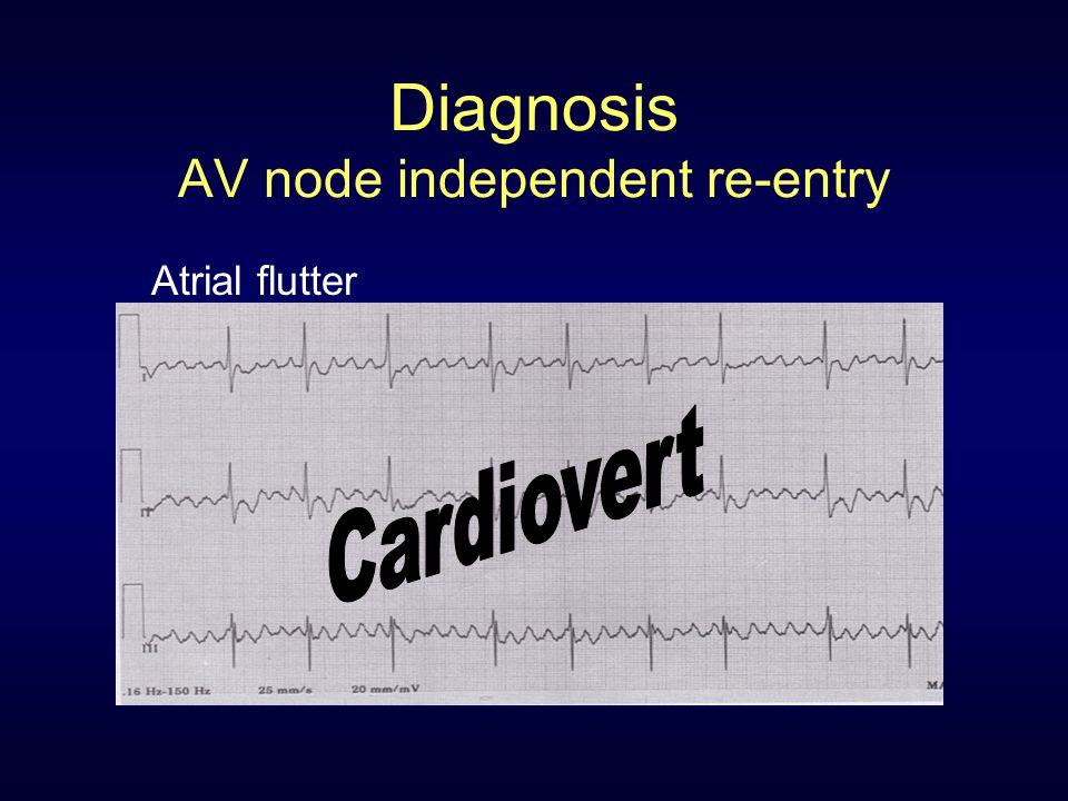 Diagnosis AV node independent re-entry Atrial flutter