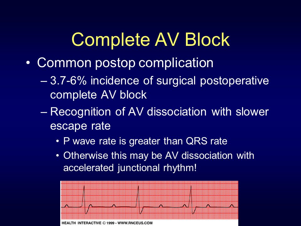 Complete AV Block Common postop complication –3.7-6% incidence of surgical postoperative complete AV block –Recognition of AV dissociation with slower escape rate P wave rate is greater than QRS rate Otherwise this may be AV dissociation with accelerated junctional rhythm!