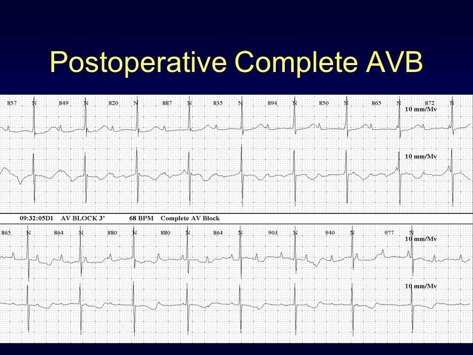 Postoperative Complete AVB
