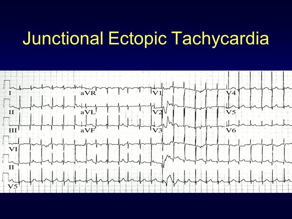 Junctional Ectopic Tachycardia
