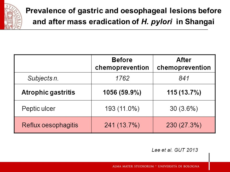 Before chemoprevention After chemoprevention Subjects n.1762841 Atrophic gastritis1056 (59.9%)115 (13.7%) Peptic ulcer193 (11.0%)30 (3.6%) Reflux oeso